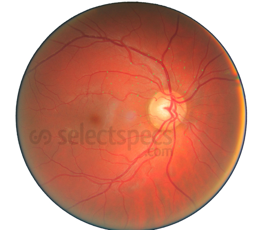 Retina_Right_Eye