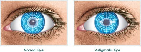astigmatic-eye-illustration