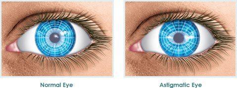 astigmatic-eye-illustration
