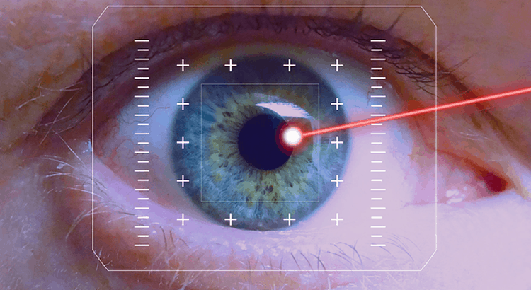Laser-Eye-Surgery-Personal-Experience-Review