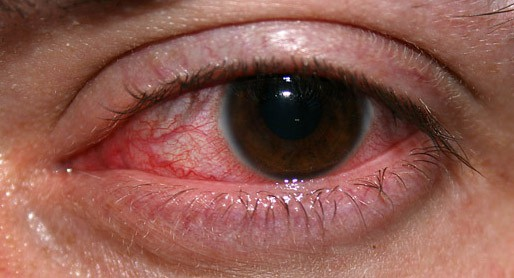 liver and eye health