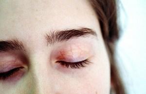 blink tired eyes