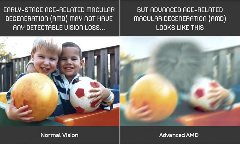 blured-vision