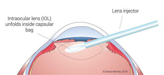 cataract-surgery-step2